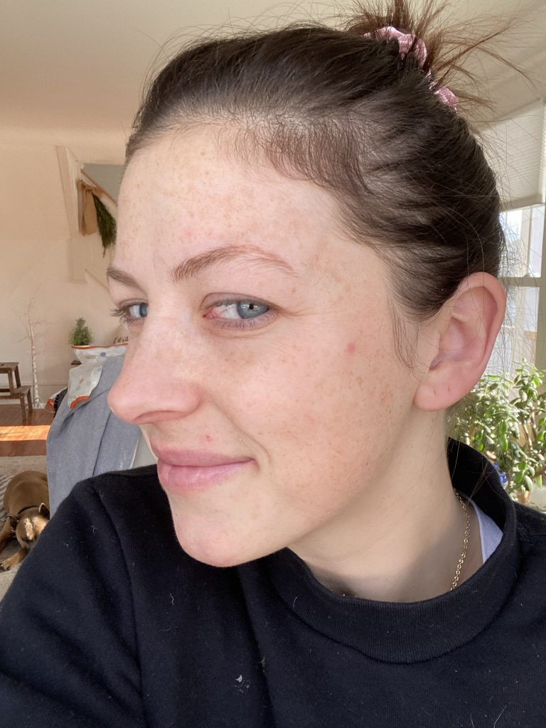 the wild Decoelis | I've Been Using Retinol for a Month, Here's What Happened  | before using retinol